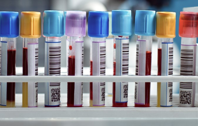 We Compare Private Blood Tests